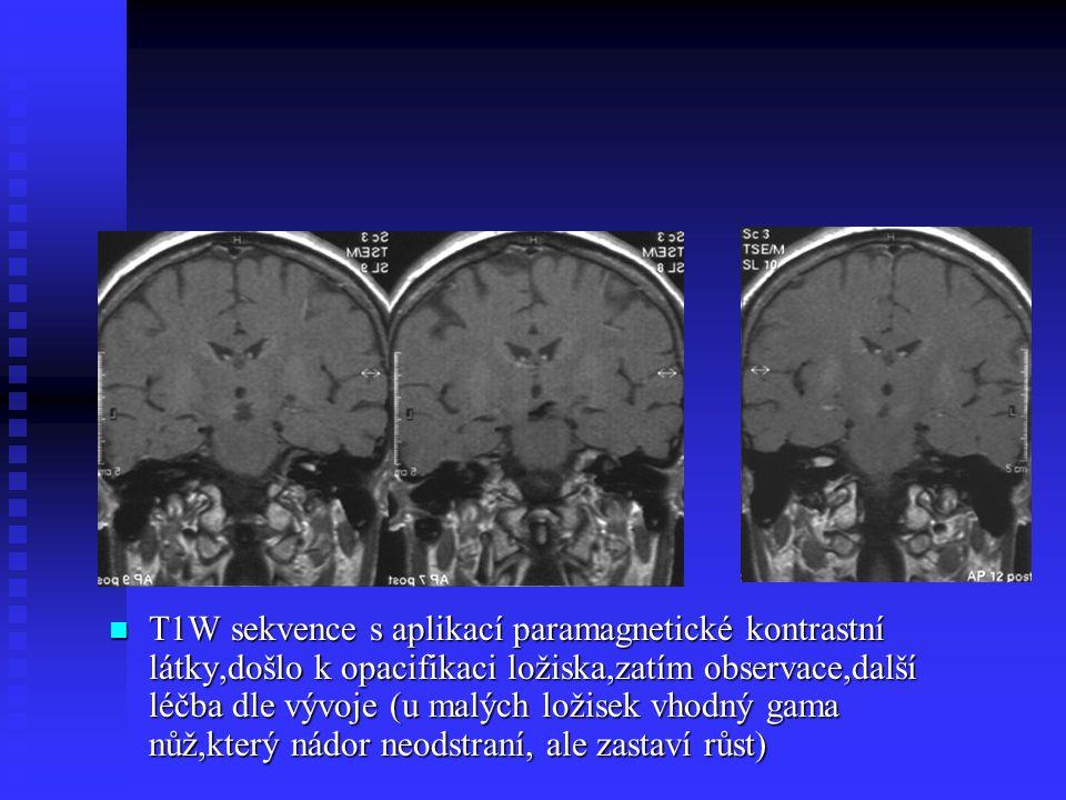 T1W sekvence s aplikací paramagnetické kontrastní látky,došlo k opacifikaci ložiska,zatím observace,další léčba dle vývoje (u malých ložisek vhodný gama nůž,který nádor neodstraní, ale zastaví růst)
