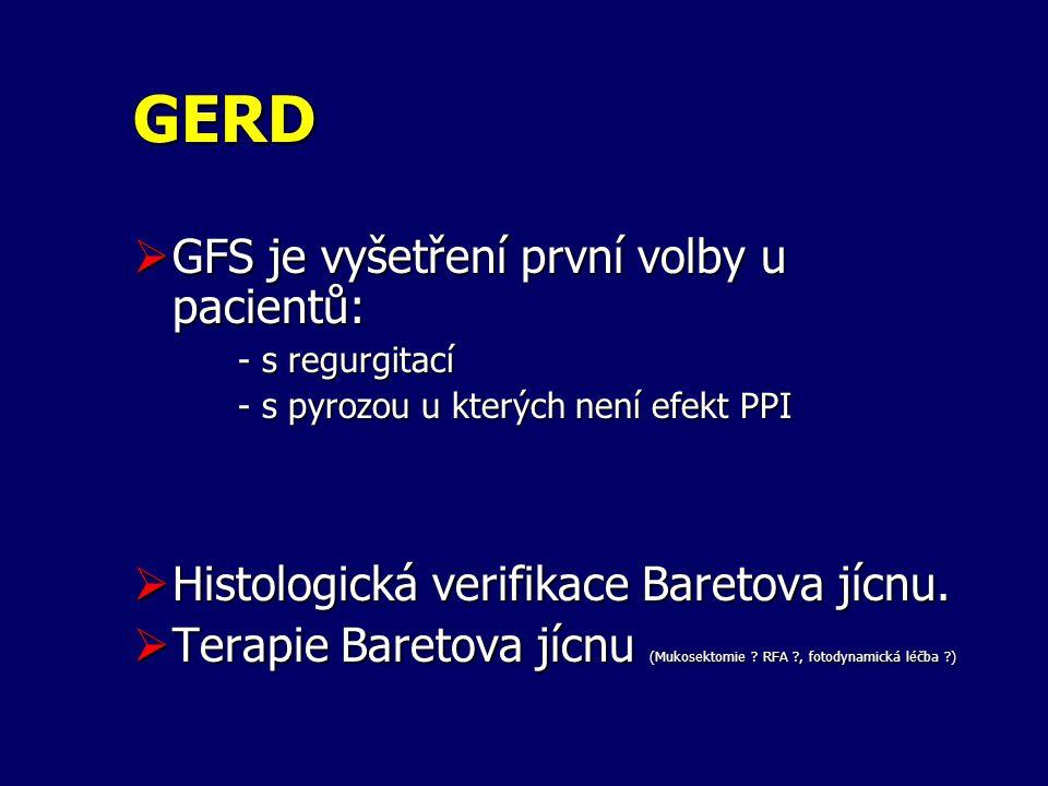 GERD GFS je vyšetření první volby u pacientů: