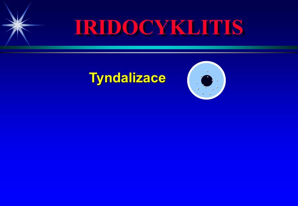 IRIDOCYKLITIS Tyndalizace . . . . . . . . . . . . . 4