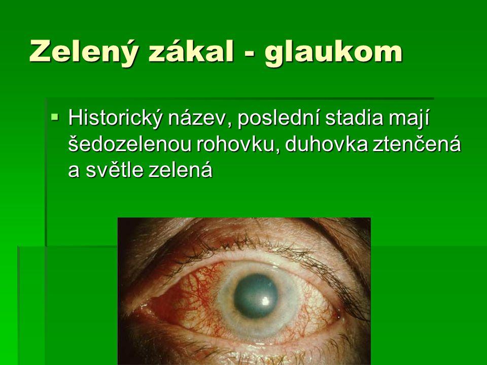 Zelený zákal - glaukom Historický název, poslední stadia mají šedozelenou rohovku, duhovka ztenčená a světle zelená.