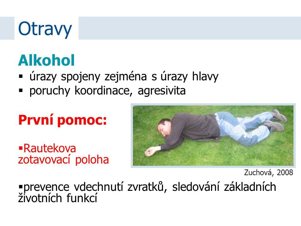 Otravy Alkohol První pomoc: úrazy spojeny zejména s úrazy hlavy