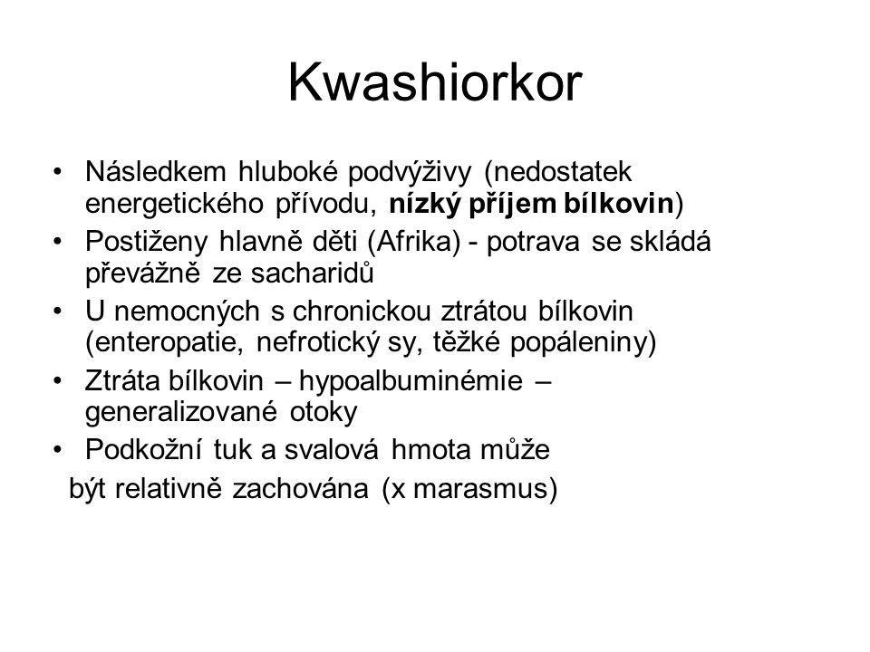 Kwashiorkor Následkem hluboké podvýživy (nedostatek energetického přívodu, nízký příjem bílkovin)