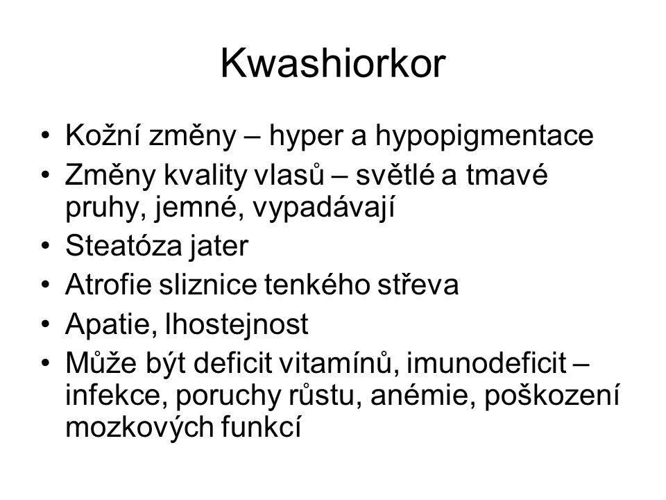 Kwashiorkor Kožní změny – hyper a hypopigmentace