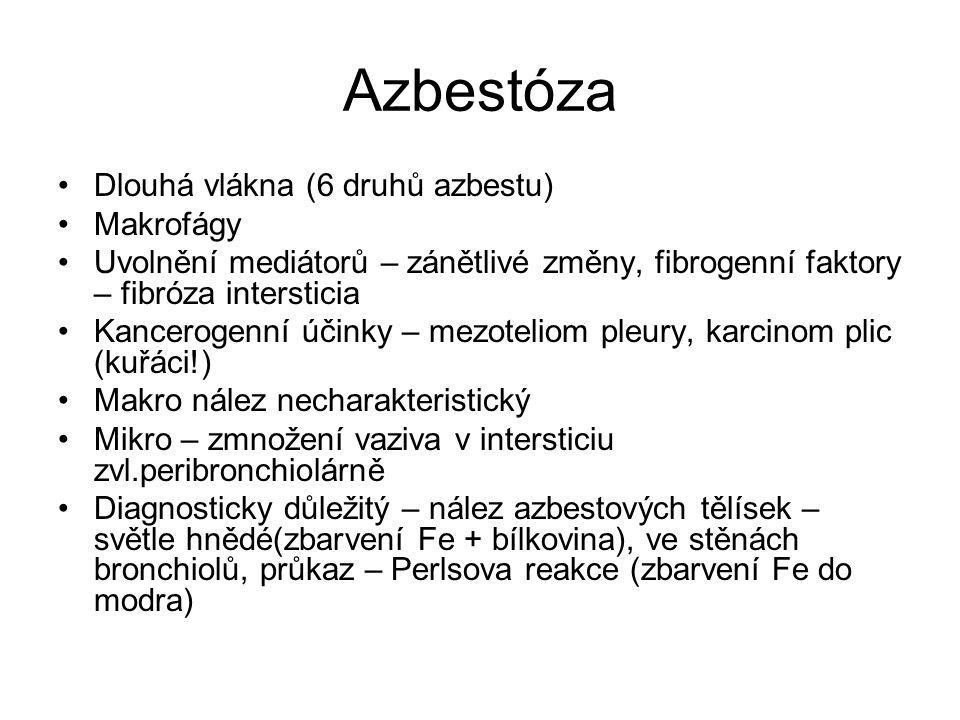 Azbestóza Dlouhá vlákna (6 druhů azbestu) Makrofágy