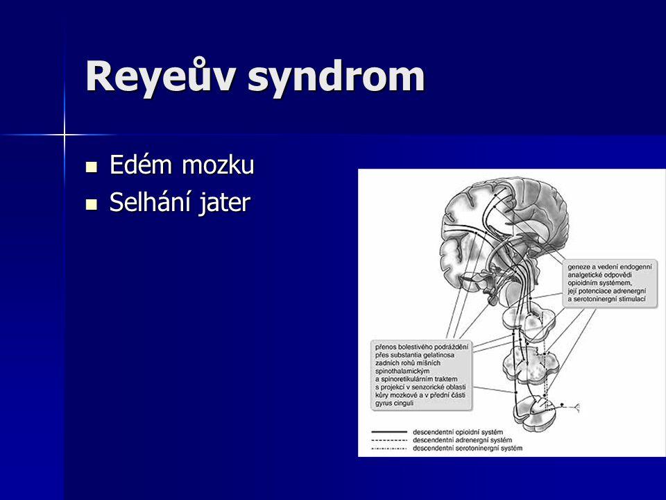 Reyeův syndrom Edém mozku Selhání jater