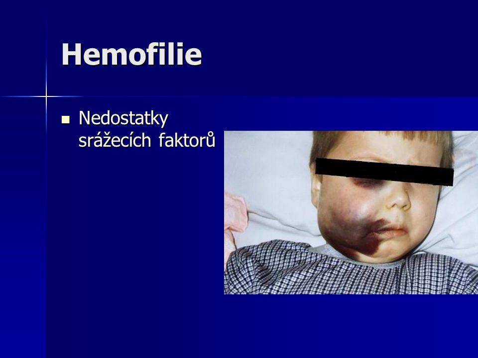 Hemofilie Nedostatky srážecích faktorů