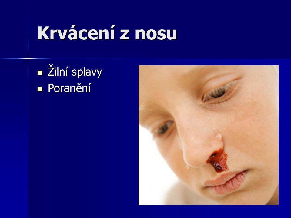 Krvácení z nosu Žilní splavy Poranění