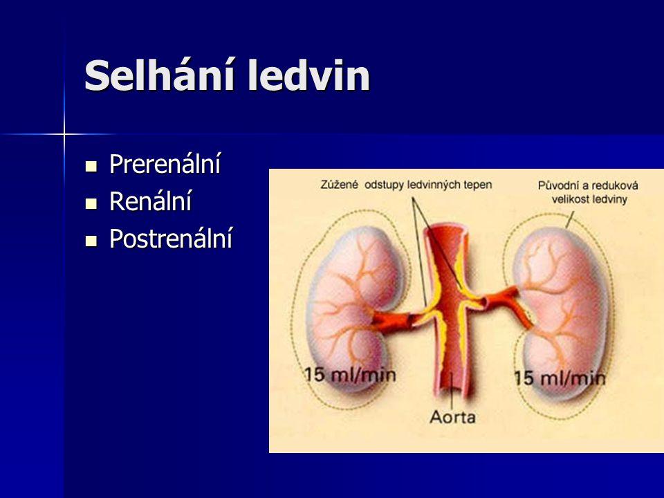 Selhání ledvin Prerenální Renální Postrenální