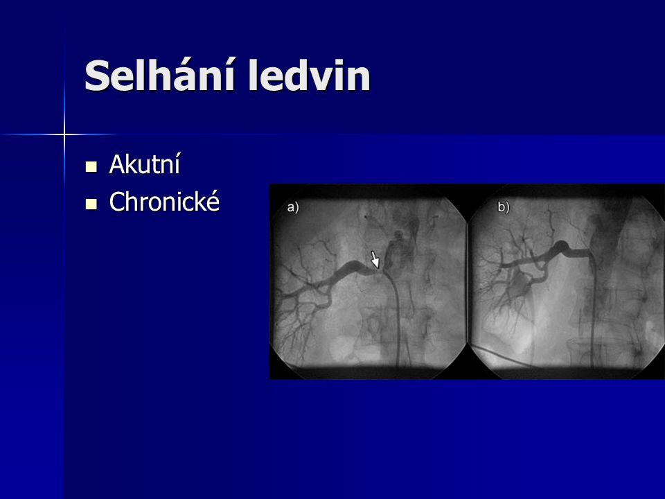 Selhání ledvin Akutní Chronické