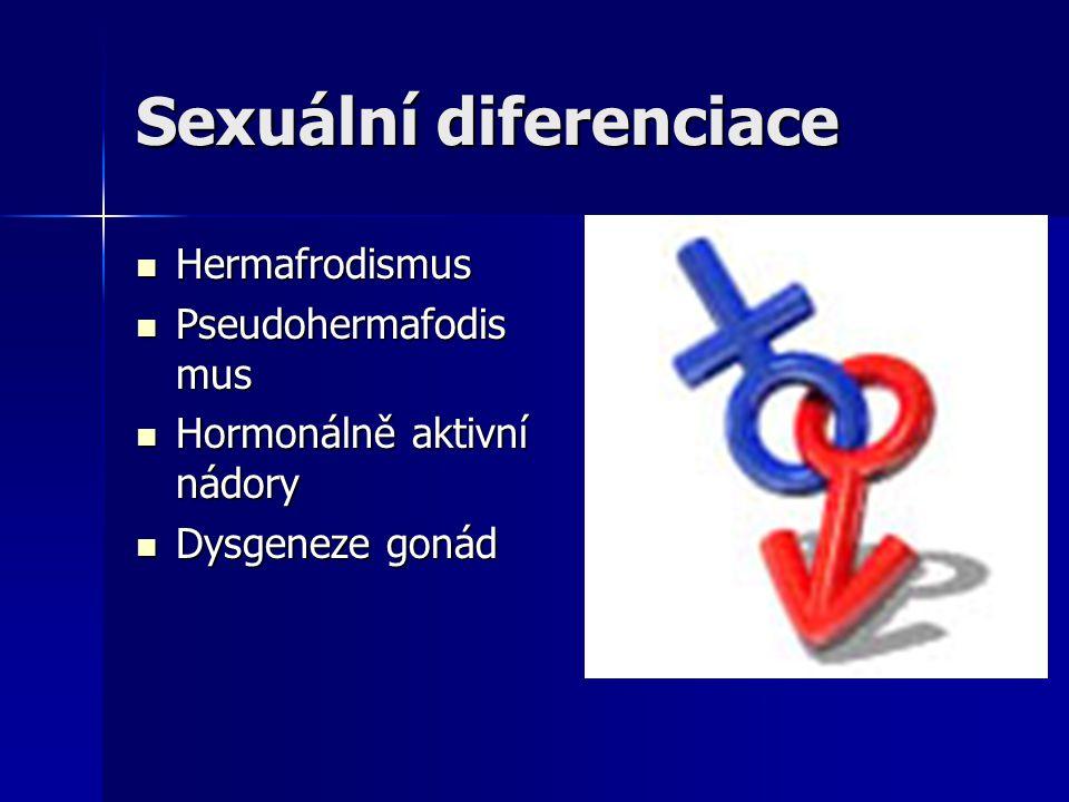 Sexuální diferenciace