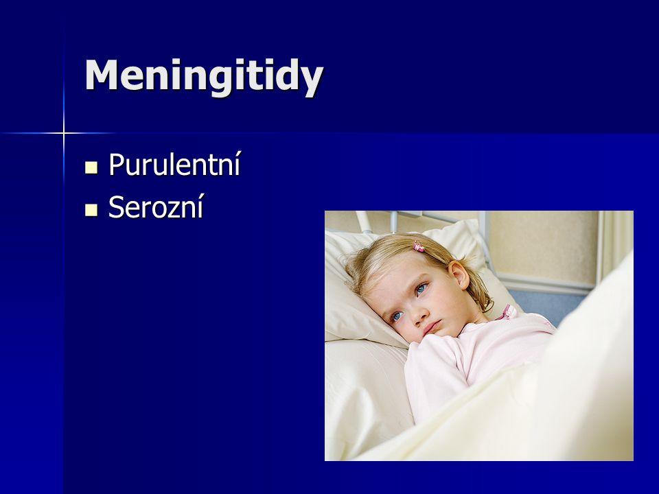 Meningitidy Purulentní Serozní