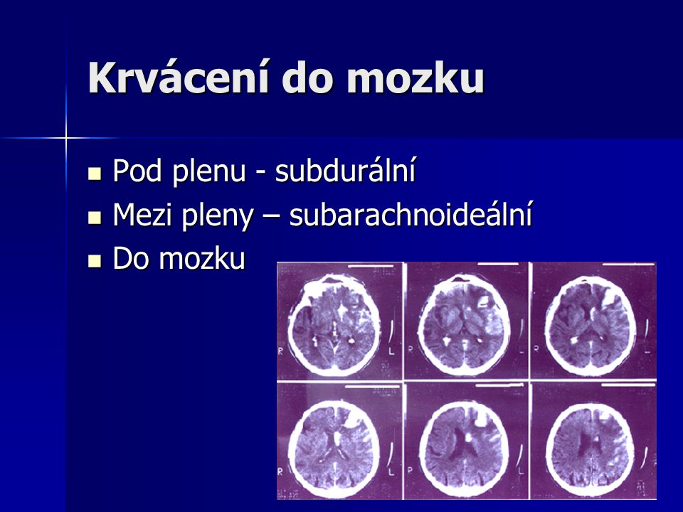 Krvácení do mozku Pod plenu - subdurální