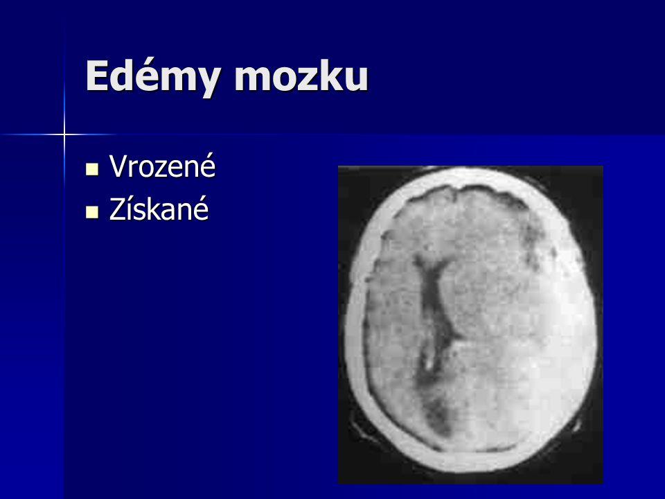 Edémy mozku Vrozené Získané