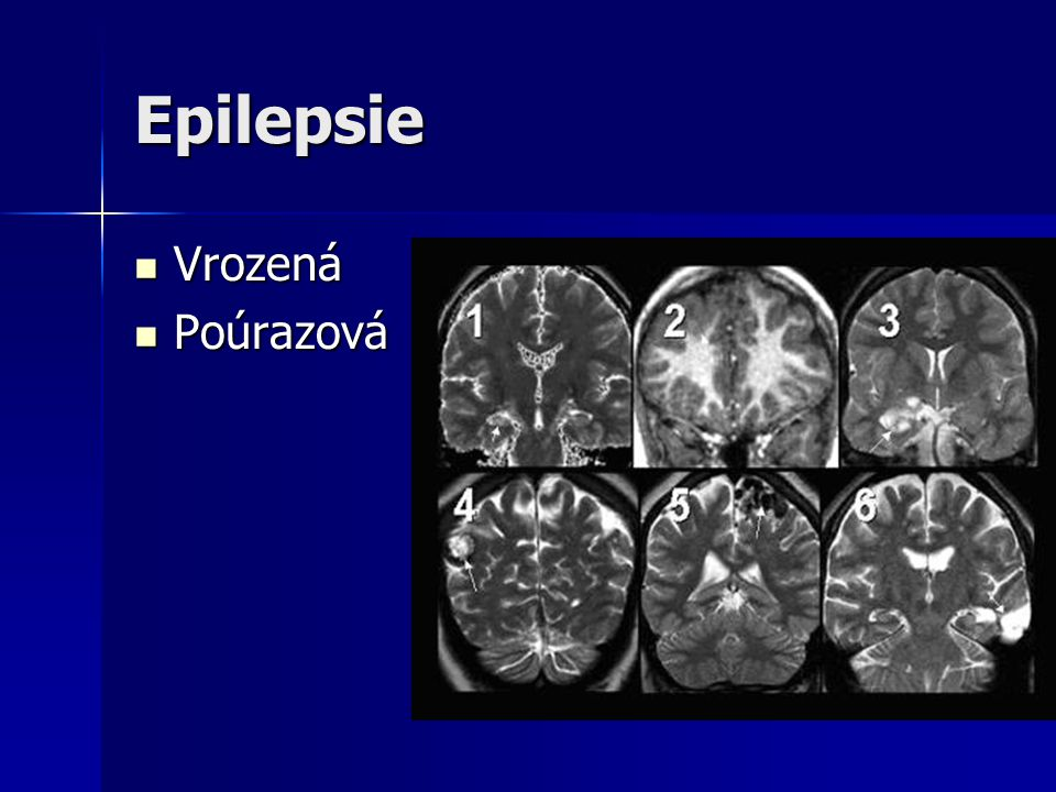 Epilepsie Vrozená Poúrazová