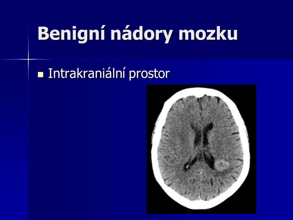 Benigní nádory mozku Intrakraniální prostor