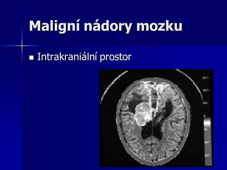 Maligní nádory mozku Intrakraniální prostor