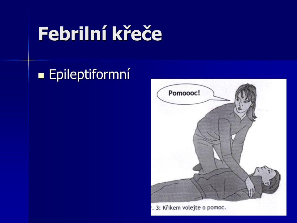 Febrilní křeče Epileptiformní