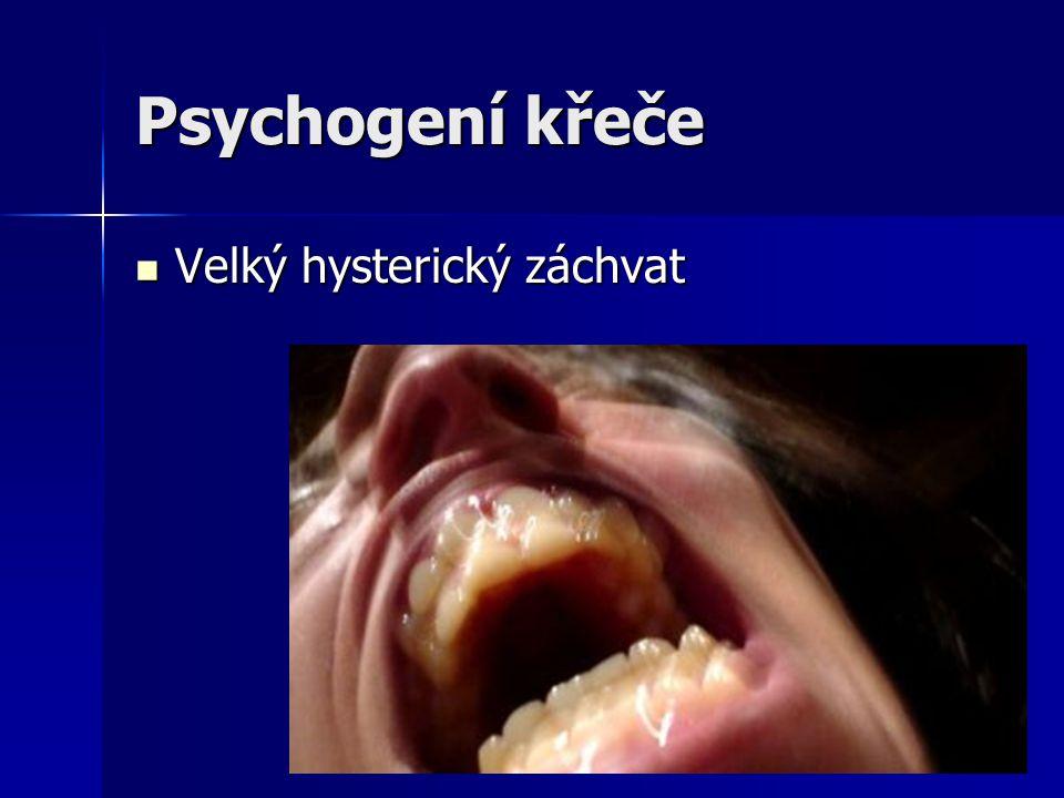 Psychogení křeče Velký hysterický záchvat