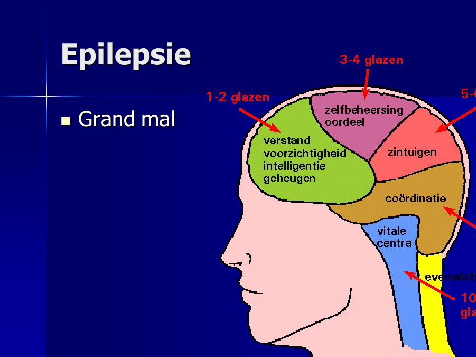Epilepsie Grand mal