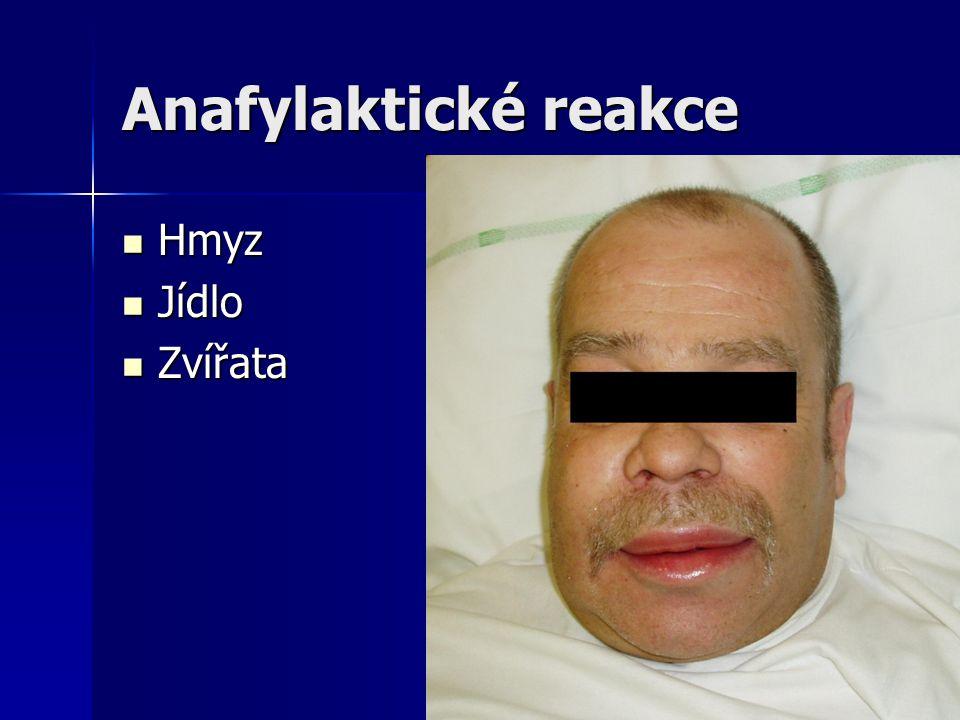 Anafylaktické reakce Hmyz Jídlo Zvířata