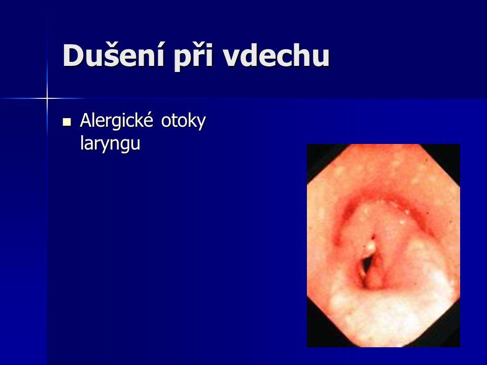 Dušení při vdechu Alergické otoky laryngu