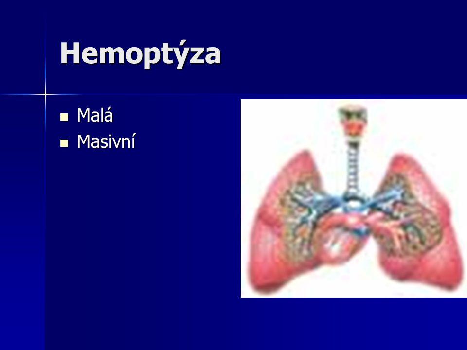 Hemoptýza Malá Masivní