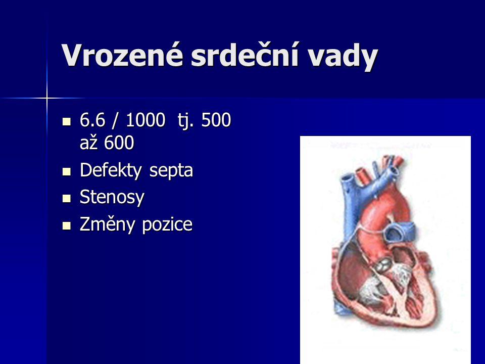 Vrozené srdeční vady 6.6 / 1000 tj. 500 až 600 Defekty septa Stenosy