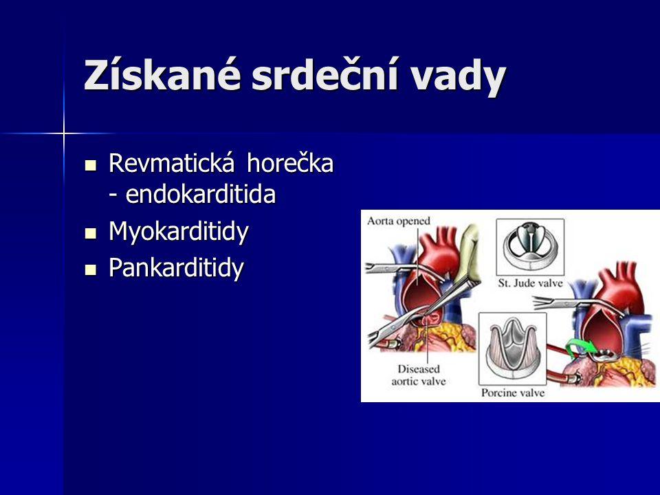 Získané srdeční vady Revmatická horečka - endokarditida Myokarditidy