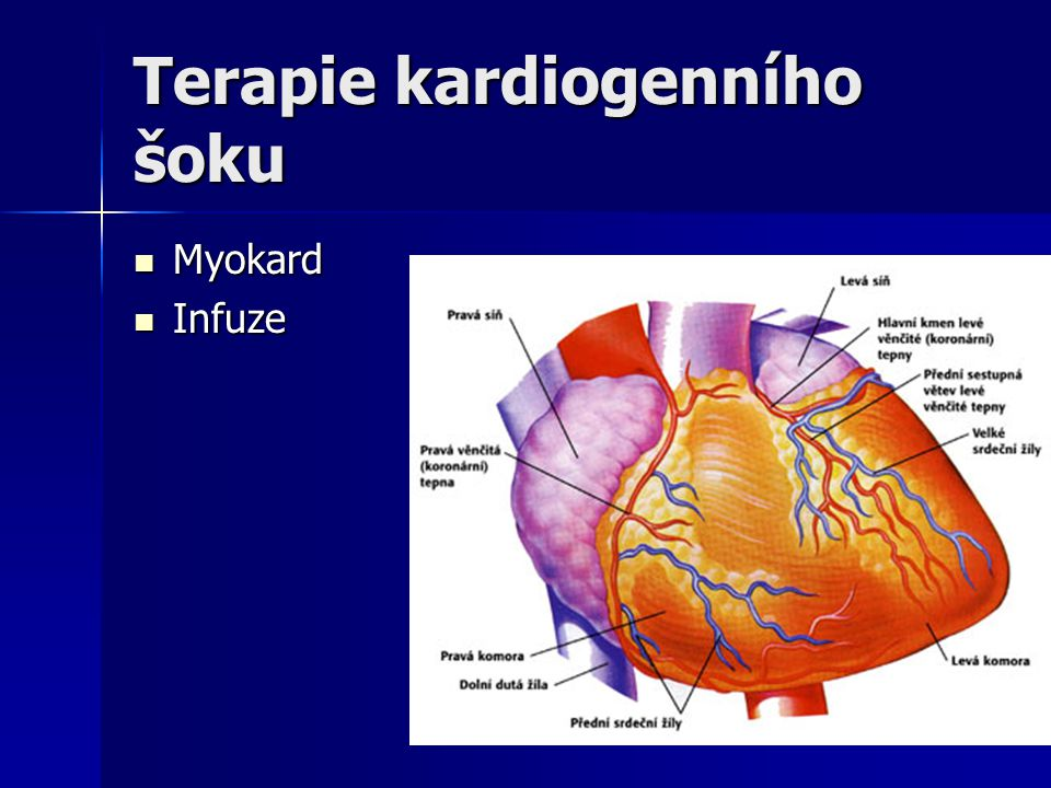Terapie kardiogenního šoku