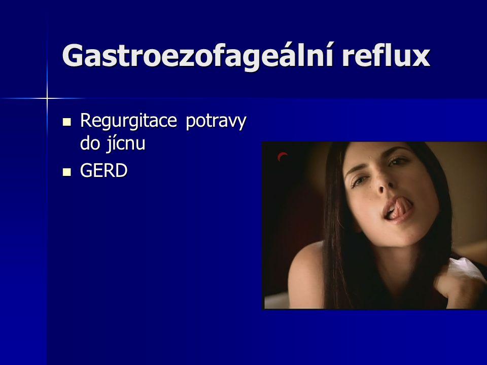 Gastroezofageální reflux