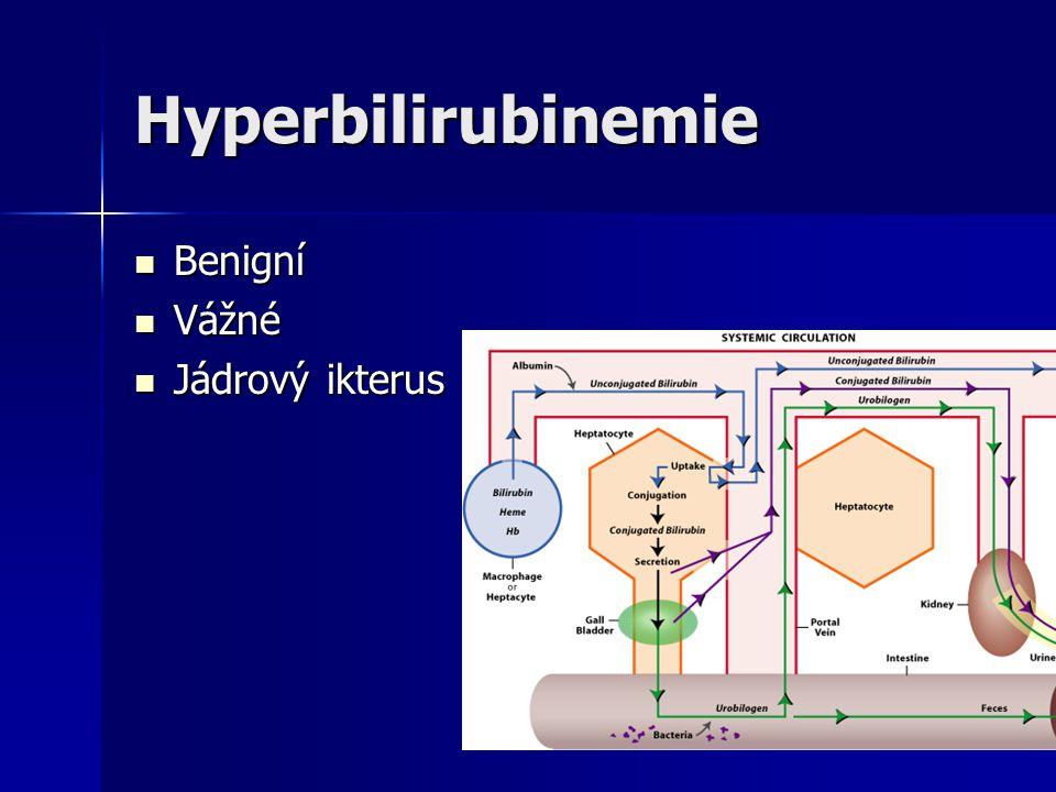 Hyperbilirubinemie Benigní Vážné Jádrový ikterus