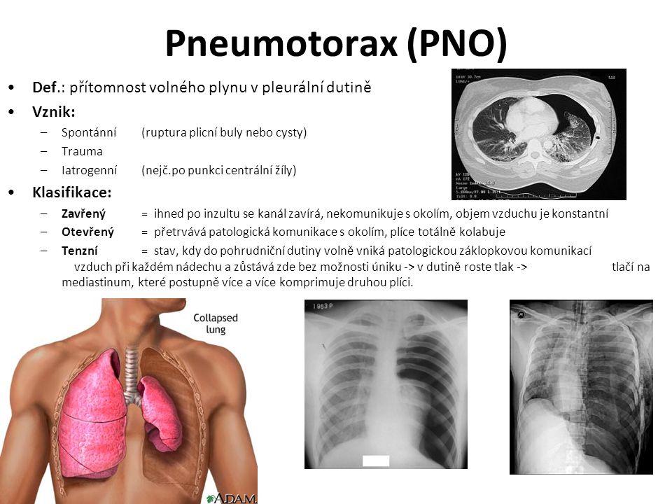 Pneumotorax (PNO) Def.: přítomnost volného plynu v pleurální dutině