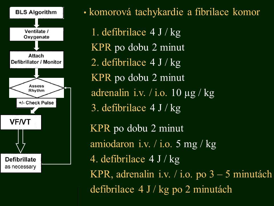 komorová tachykardie a fibrilace komor