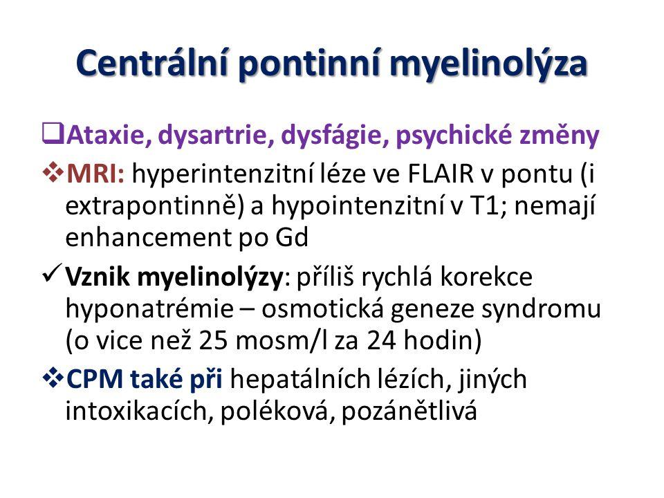 Centrální pontinní myelinolýza