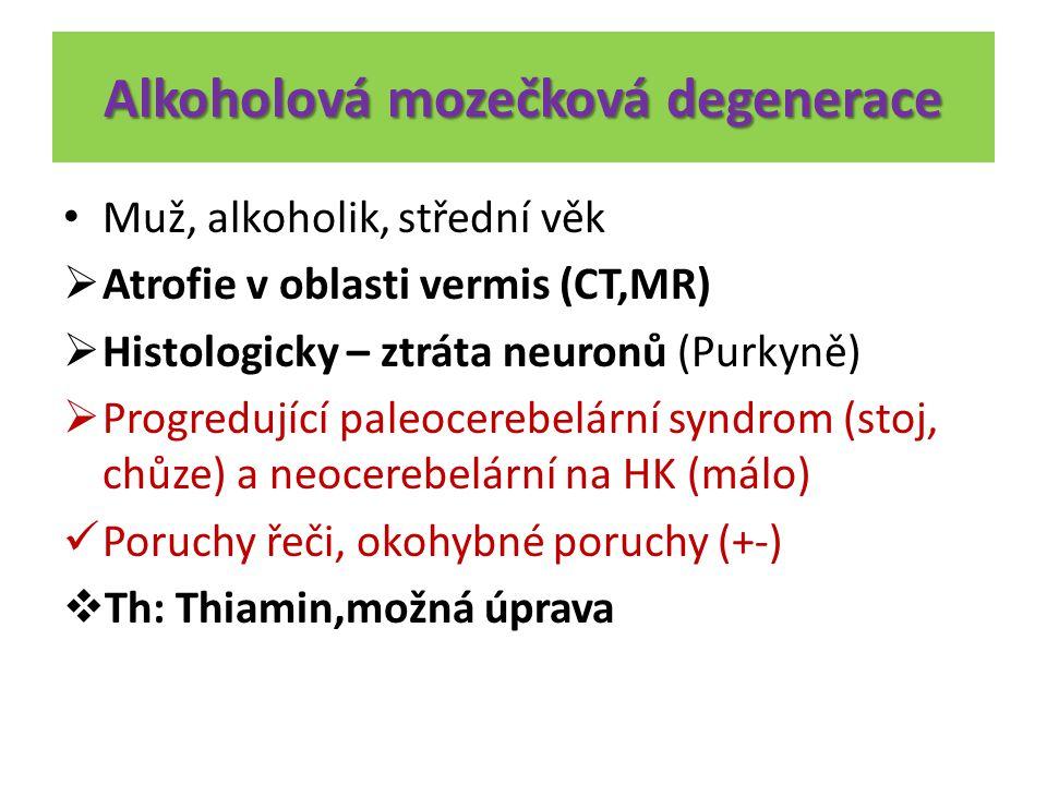 Alkoholová mozečková degenerace