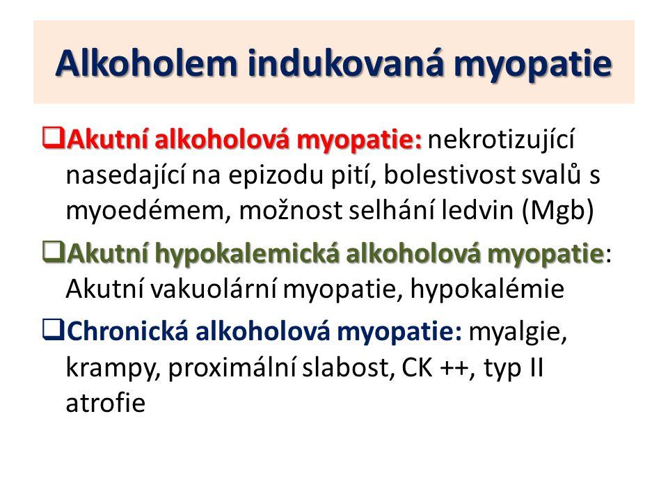 Alkoholem indukovaná myopatie