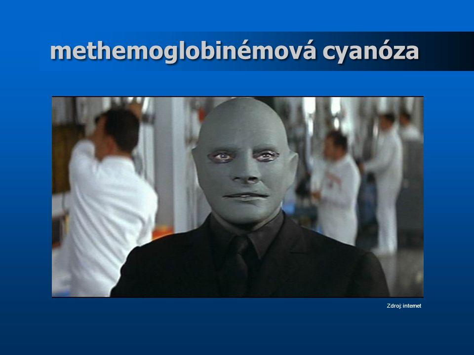 methemoglobinémová cyanóza