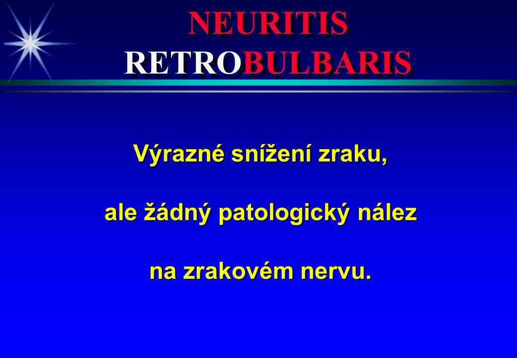 NEURITIS RETROBULBARIS ale žádný patologický nález