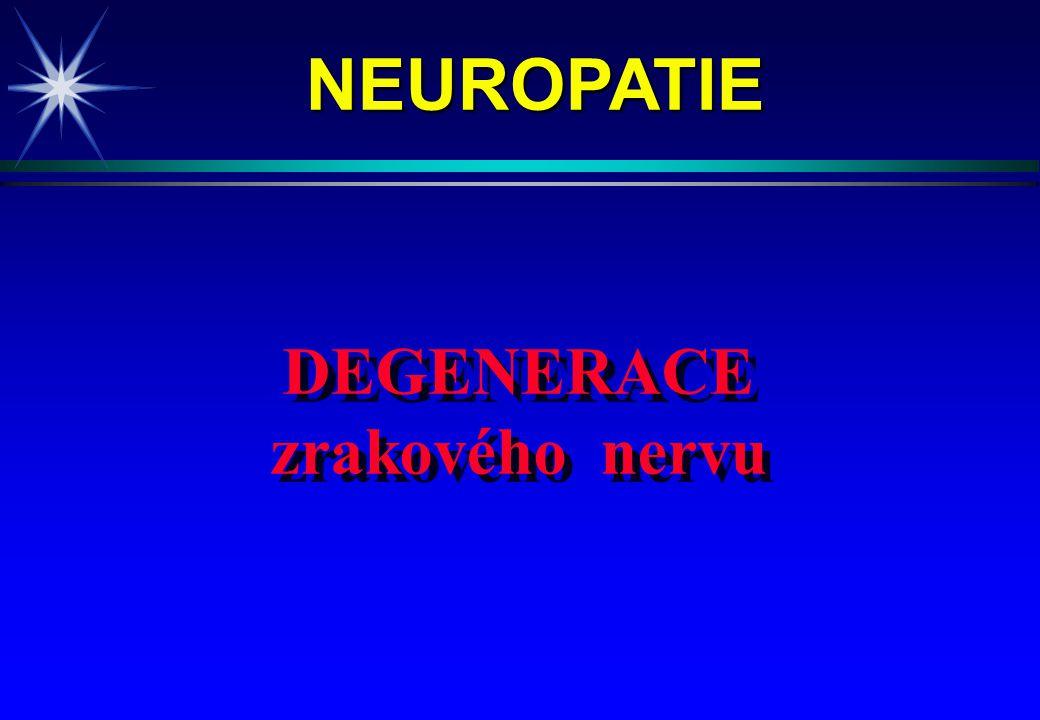 NEUROPATIE DEGENERACE zrakového nervu 4