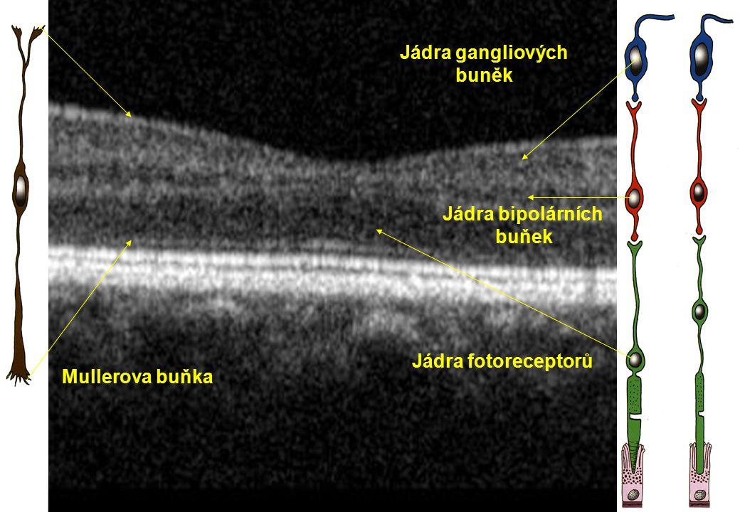 Jádra gangliových buněk Jádra bipolárních buňek Jádra fotoreceptorů Mullerova buňka