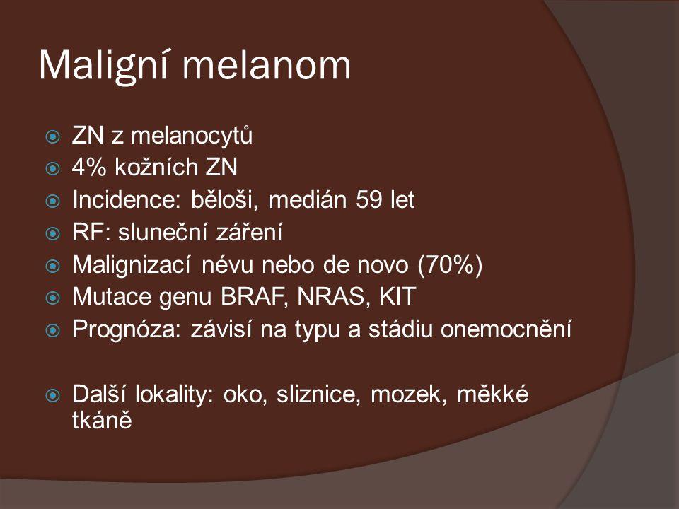 Maligní melanom ZN z melanocytů 4% kožních ZN