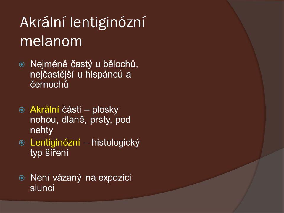 Akrální lentiginózní melanom