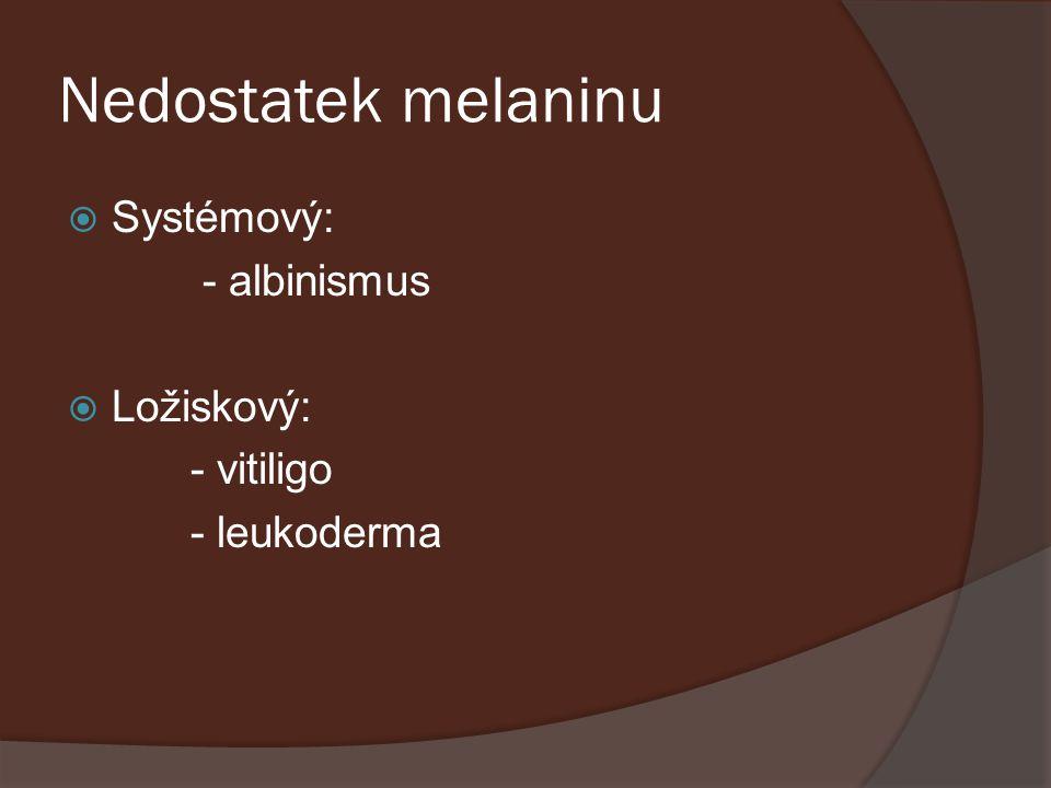 Nedostatek melaninu Systémový: - albinismus Ložiskový: - vitiligo