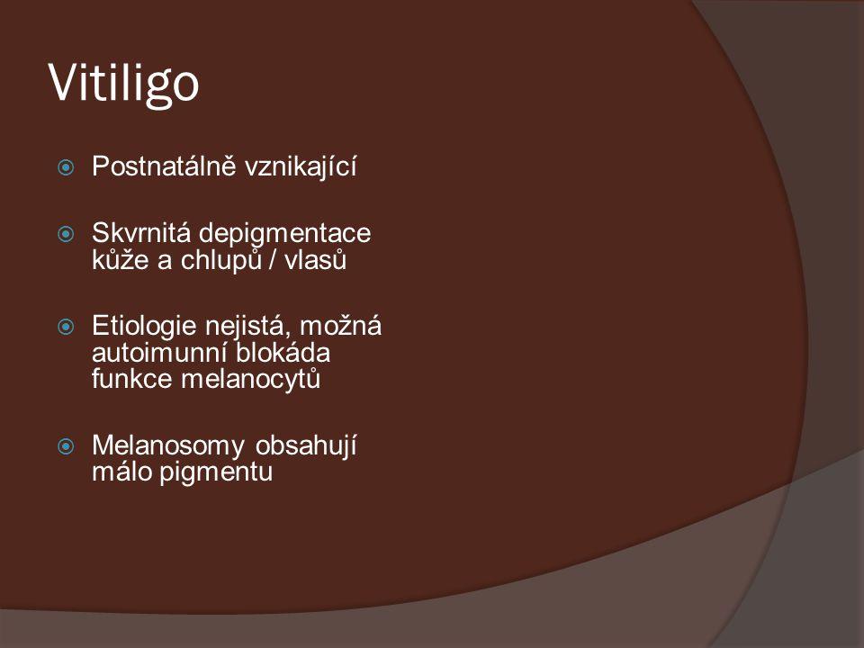 Vitiligo Postnatálně vznikající