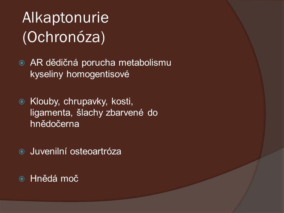 Alkaptonurie (Ochronóza)