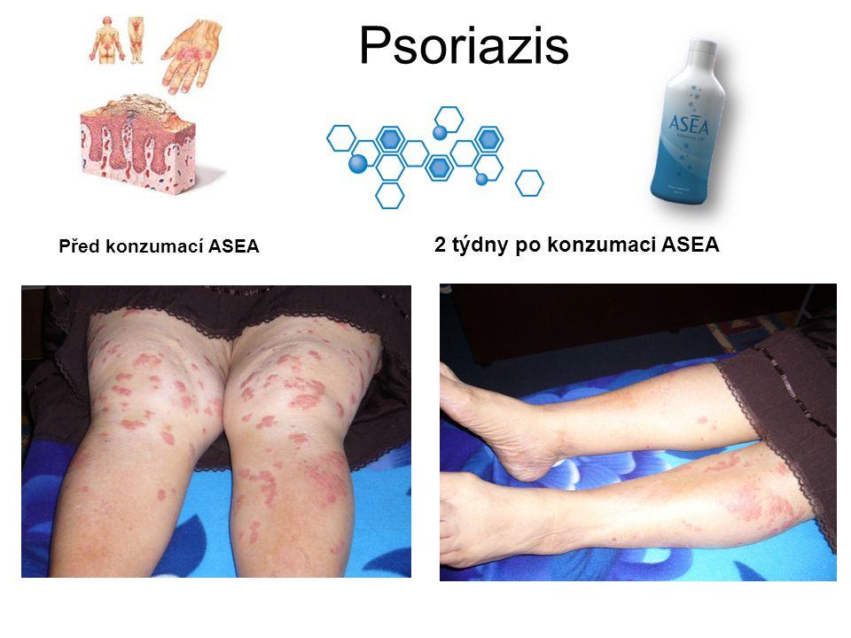 Psoriazis 2 týdny po konzumaci ASEA Před konzumací ASEA