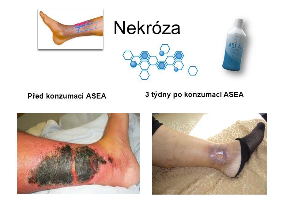Nekróza 3 týdny po konzumaci ASEA Před konzumací ASEA