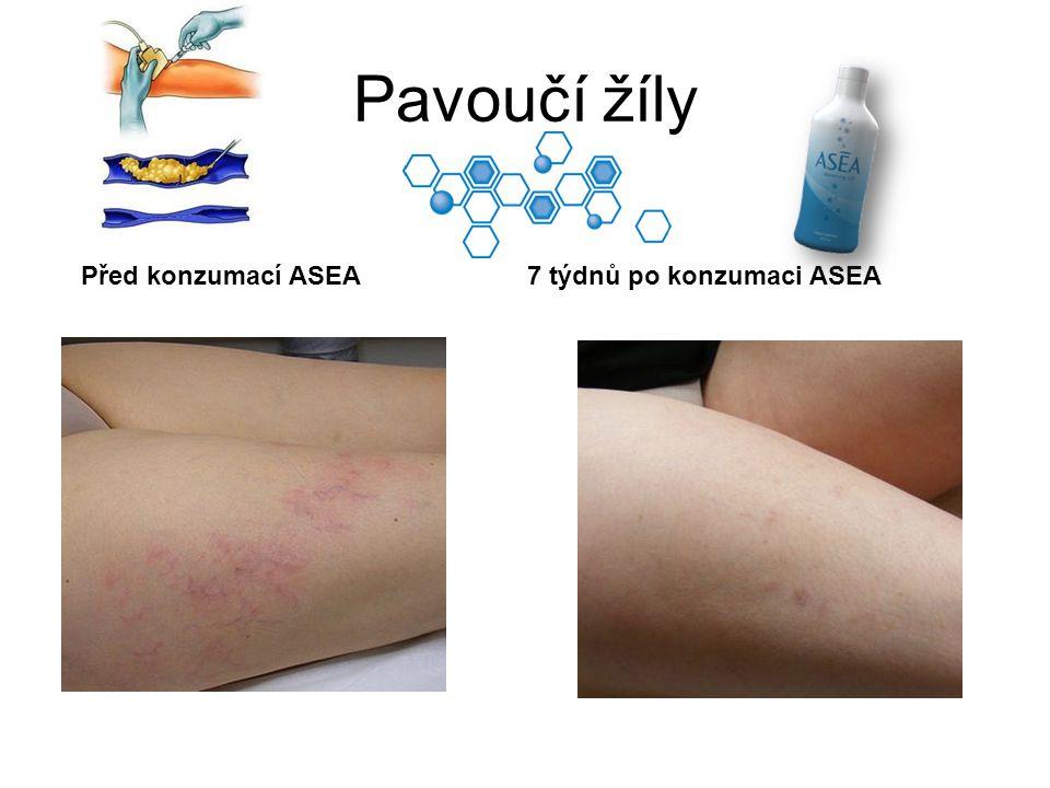 Pavoučí žíly Před konzumací ASEA 7 týdnů po konzumaci ASEA