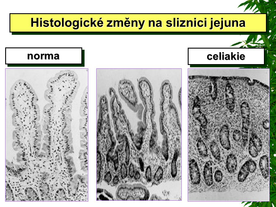 Histologické změny na sliznici jejuna