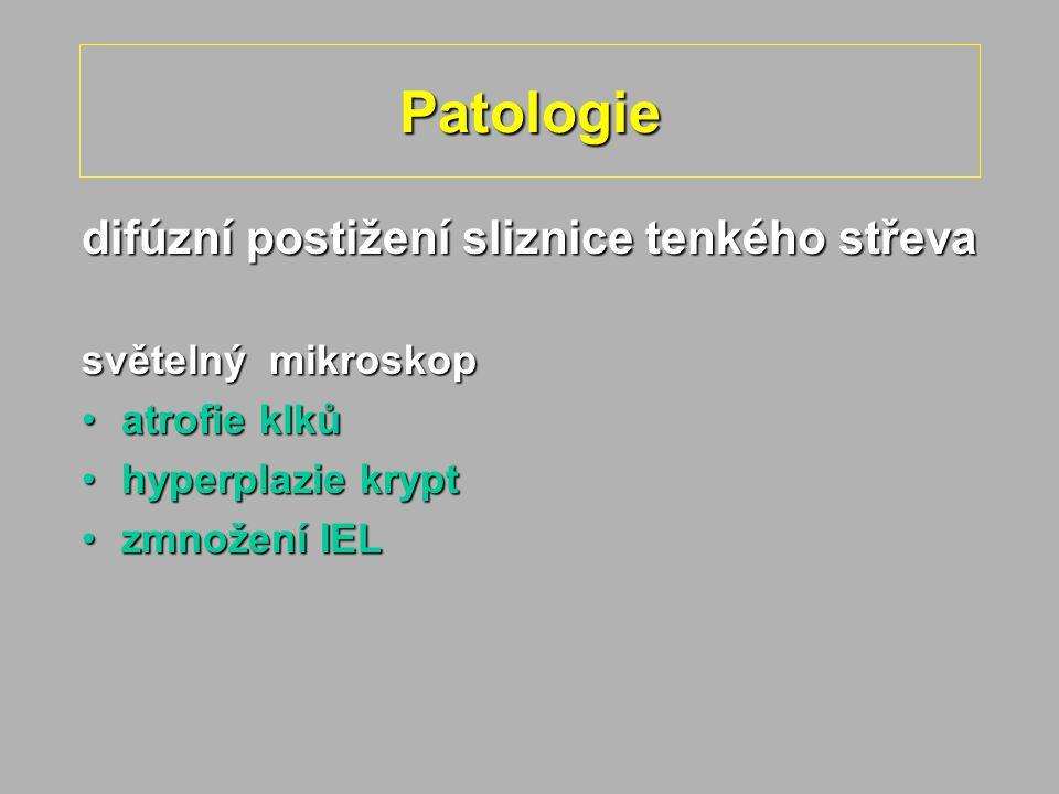 Patologie difúzní postižení sliznice tenkého střeva světelný mikroskop